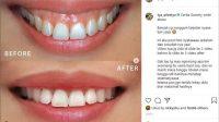 Tya Ariestya perawatan gigi hingga potong gusi. (Instagram/@tya_ariestya)